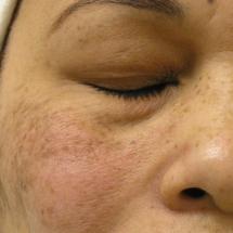 Hydra Facial: Große Poren