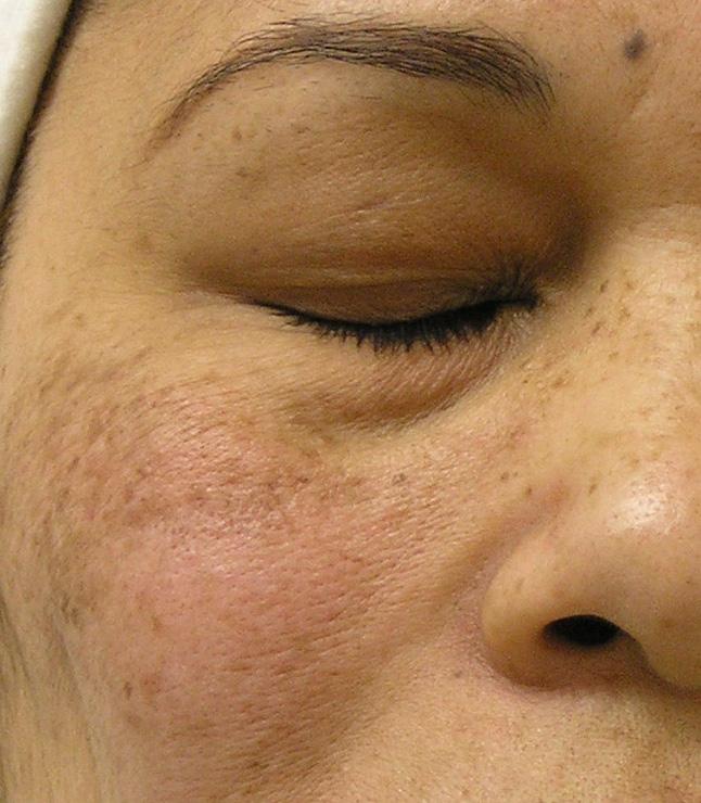 Make-up für offene Poren