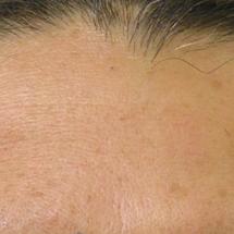 Hydra Facial: Fältchen