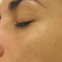 Hydra Facial: Hyperpigmentierung