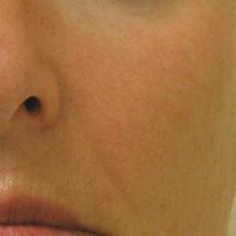 6Hydra Facial: Fältchen
