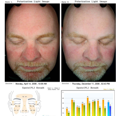 Hydra Facial: Sonnengeschädigte Haut